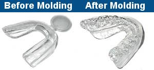 Mouth Trays - before and after