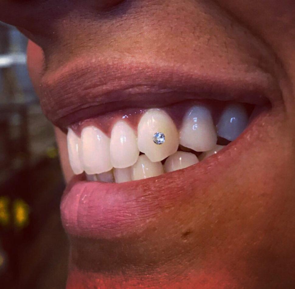 Swarovski Tooth Crystals Swarovski Tooth Crystals